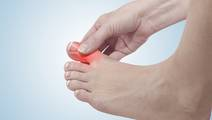 New Insights Gained into Genetics of Gout in Maori and Pacific People