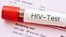 HIV Cure Could Be Found Via Cancer Research