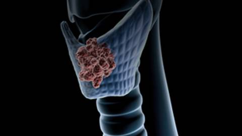 Current Best Practices in the Management of Thyroid Nodules and Cancer