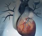 Decision Making in Revascularization: CABG or PCI?