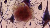 Promising Alzheimer's treatment flops in new trial