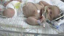 16 Percent Rate of Acute Neurological Conditions in Critically ill Children