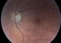 An Optic Neuritis Primer