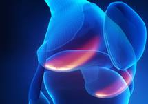 Effect of Intra-articular Triamcinolone vs Saline on Knee Cartilage Volume and Pain in Patients With Knee Osteoarthritis: A Randomized Clinical Trial
