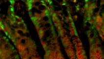 Study advances understanding of colon cancer and colitis