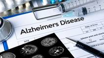 New Alzheimer's Test can Predict Age when Disease will Appear