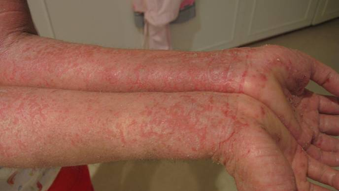 Single-Gene Mutations Identified that Lead to Skin Condition