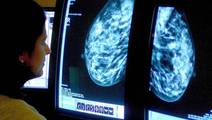 For the Most Common Breast Cancer Type, the Risk of Recurrence Lingers