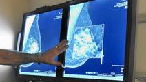 New Imaging Technologies Improve Chances Of Early Breast Cancer Detection