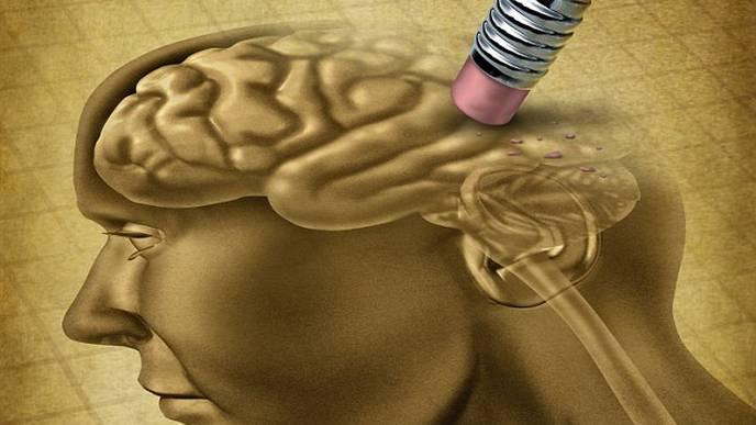 This New Alzheimer's Test Looks Beyond a Single Problem Gene