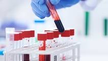 Blood Test may Gauge Death Risk after Surgery