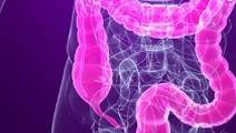 Be kind to your colon with less-invasive screenings