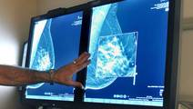 Women with Advanced Breast Cancer are Surviving Longer