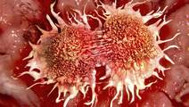 Some Immune Cells May Help Tumors Instead of Destroying Them