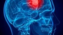 Researchers Map Brain Tumor Cells' Adaptation To Oxygen Deprivation