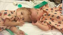 How 3-D Technology Helped Surgeons Separate Conjoined Twins