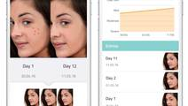 Dermatologists develop app to self-analyze acne, customize treatment