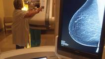 Asian Women Face Longer Mammography Follow-Up Times