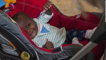 Risky Surgery Separates 10-Month-Old from Parasitic Twin