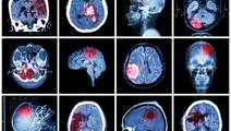 Radiation for Childhood Cancer May Lead to Adult Brain Tumors