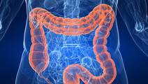 Are your Genes Putting You at Risk for Colon Cancer?