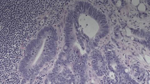 Multidisciplinary Management of Metastatic Colorectal Cancer