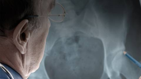 Osteoporosis Update: Keys to Improving Diagnosis and Preventing Fractures