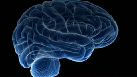 MS Academia: Multiple Sclerosis Advanced Course (pre-ECTRIMS)