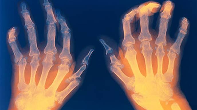 New Medical Device Helps Detect Rheumatoid Arthritis