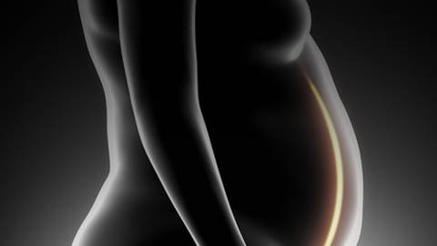 Reproductive Impacts of Bariatric Surgery for Obese Women