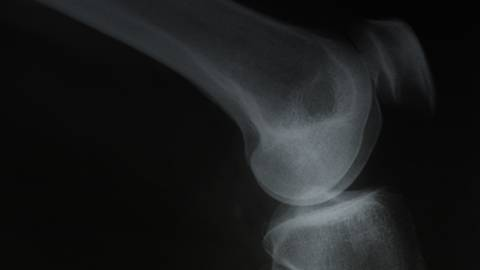 Treatment Approaches to Osteoporosis and the Problem of Adherence