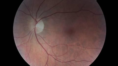 An Optic Neuritis Primer