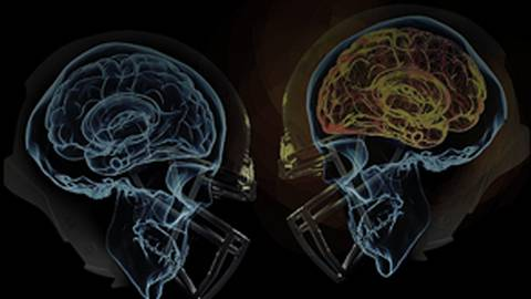 Altering the Collision Course: Protective Effects of Omega-3 Intake on Concussions