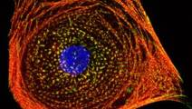 Using Stem Cells to Predict Toxicity of Chemotherapy Drugs