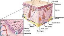 Melanoma at a Glance: SEER Stat Facts