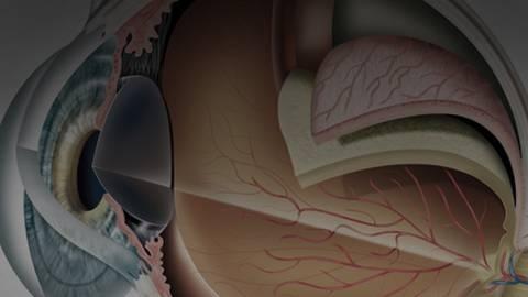 Macular Degeneration Treatments