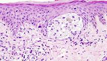 Immune-cell Numbers Predict Response to Combination Immunotherapy in Melanoma