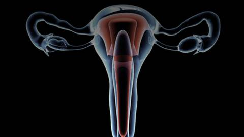 Efficacy of Tissue Removal Systems for Intrauterine Pathology