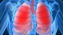 US trial tests machine that 'reconditions' lungs outside body