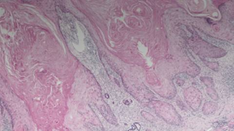 Squamous Cell Carcinoma of the Head and Neck (SCCHN): Focus on Recurrent/Metastatic Disease