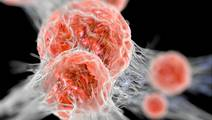 Skin cancer drug gives '40% melanoma survival'