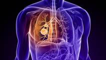 Single Molecule Determines Lung Cancer Cell Death