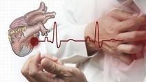 Rheumatology Patients at Increased Risk for Cardiac Disease