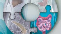 Colorectal Cancer – Integrating the Latest Advances Into Clinical Practice: Data and Expert Insights from the 2016 Meeting on Gastrointestinal Cancers in San Francisco