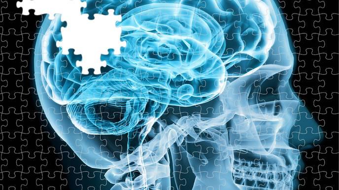 One Step Closer Toward a Treatment for Alzheimer's Disease?