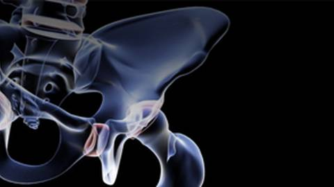 Why We Need To Improve Our Diagnosis and Treatment of Osteoporosis