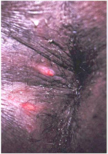 Picture of herpes on anus
