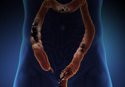 Дивертикулез кишечника: симптомы, лечение Азбука здоровья